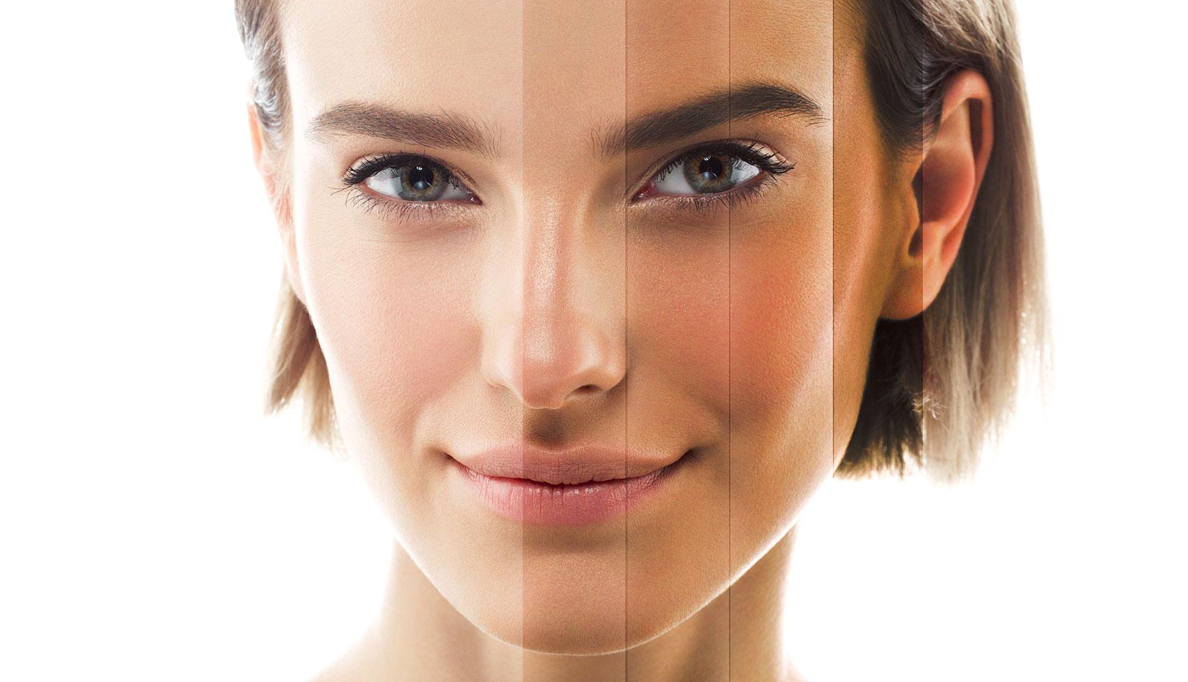 leczenie przebarwień skóry