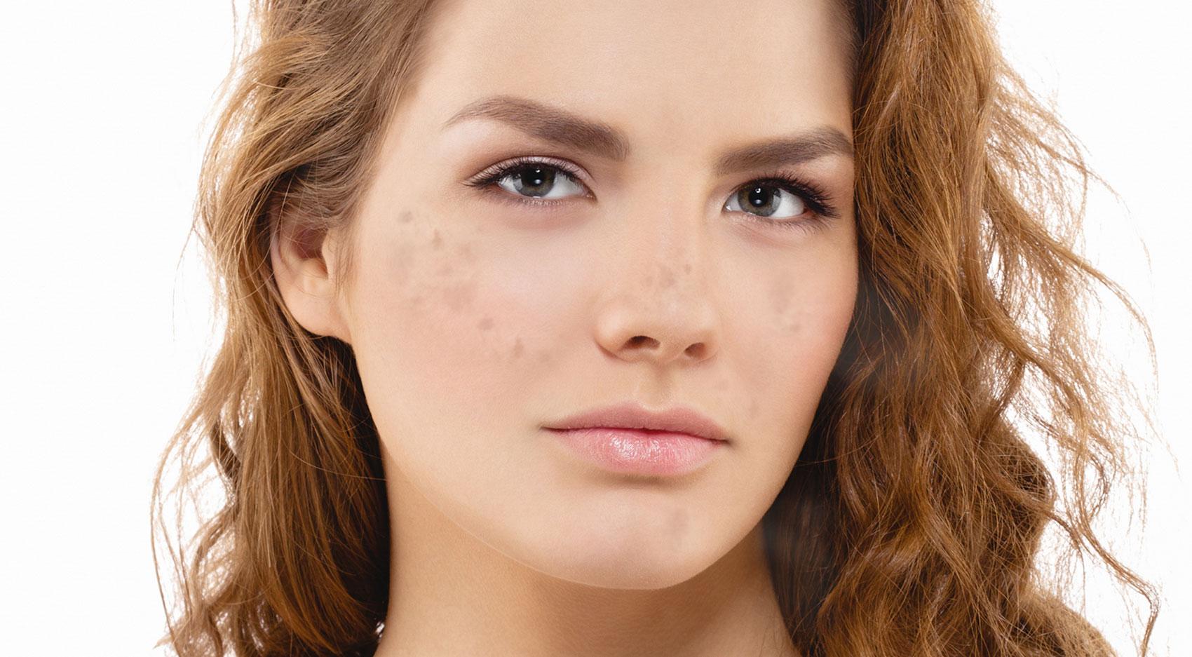 Przebarwienia po kosmetykach i po lekach